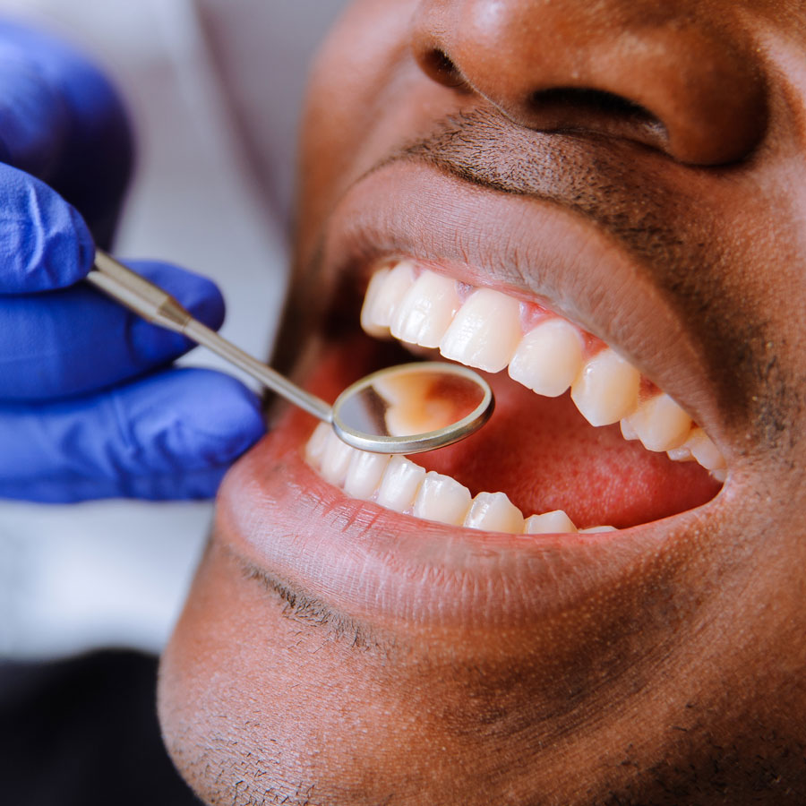 Tooth Colored Fillings in New Jersey