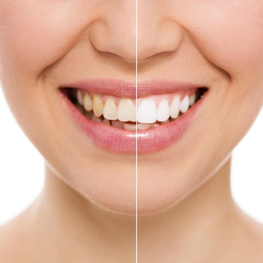 KoR Teeth Whitening in South Orange NJ
